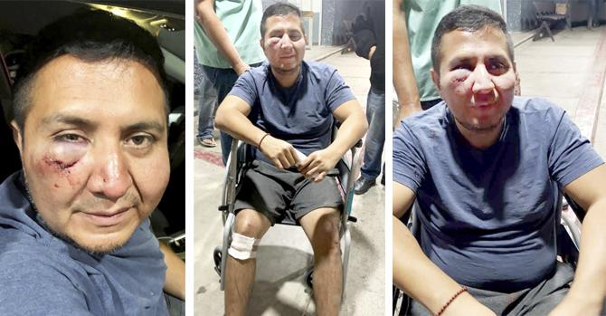 La agresión a Cris Percovich (Baja California Sur)