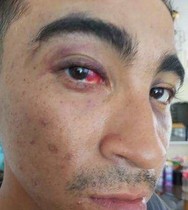 Denuncian a director de Seguridad Pública y policías municipales de Chetumal por supuesta tortura de joven durante detención