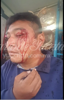 Cuatro encapuchados dan golpiza a reportero en Ticul (Yucatán)